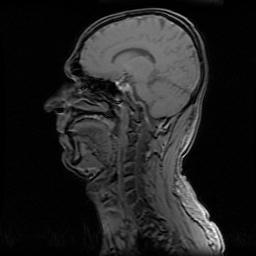 MRI 0015